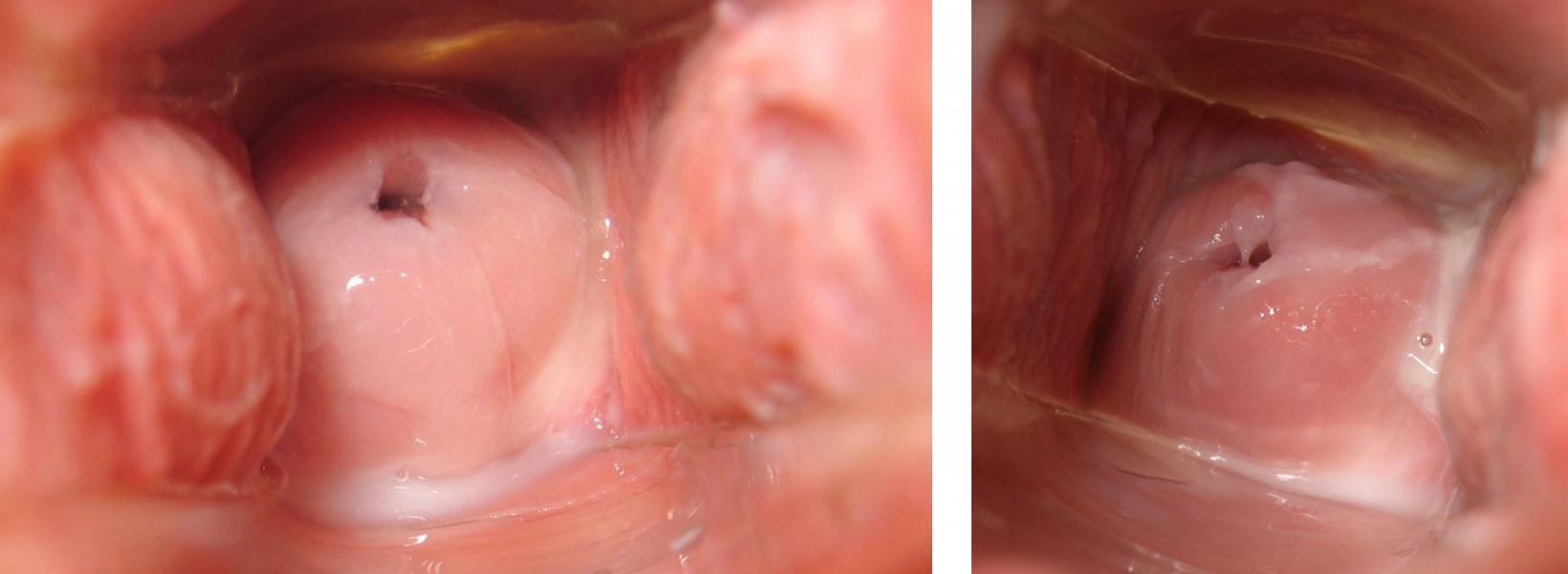 El cuello del útero: Auto-reconocimiento